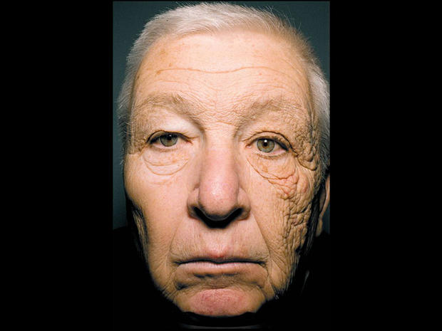 New England Journal of Medicine: This is a 69 year old truck driver with a 25 year history of sun hitting only the left side of his face as he drove. He did not use sunscreen or photoprotection.
